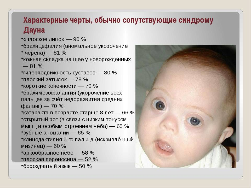Вечные дети. как построить отношения с ребенком,у которого синдромом дауна? | культура | аиф новосибирск