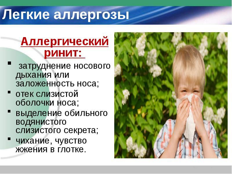 Аллергический ринит - симптомы, лечение поллиноза у пациентов взрослых и детей