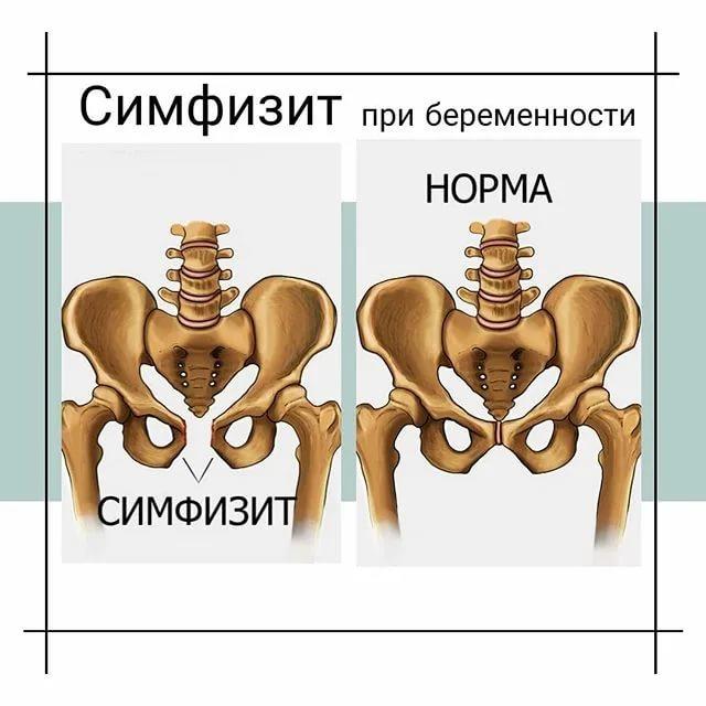 Что это такое - симфизит при беременности или после родов. симптомы и лечение - medside.ru