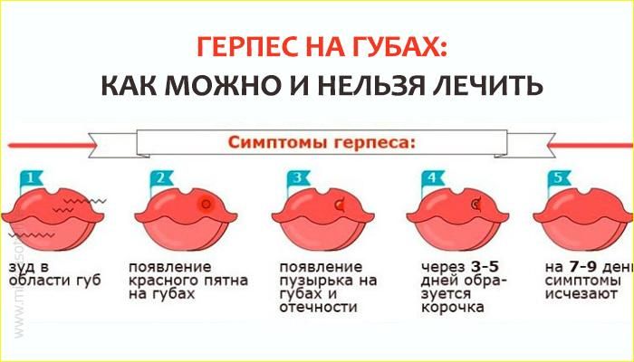 Последствия от герпеса на губе при беременности, лечение и профилактика