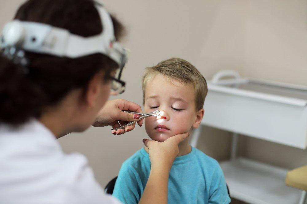 Развернутая клиническая картина хронического аденоидита у детей и этапность лечения