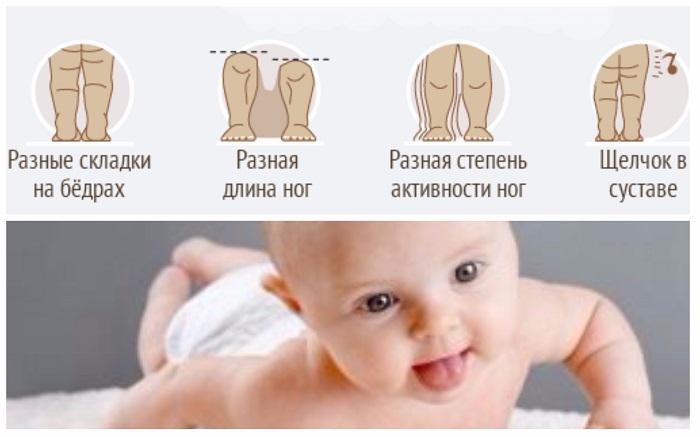 Рахит у детей: причины, симптомы, диагностика и лечение | аллегро
