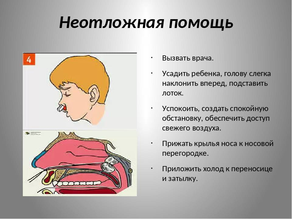 Почему идет кровь из носа у ребенка и как остановить кровотечение из носа. носовое кровотечение у ребенка