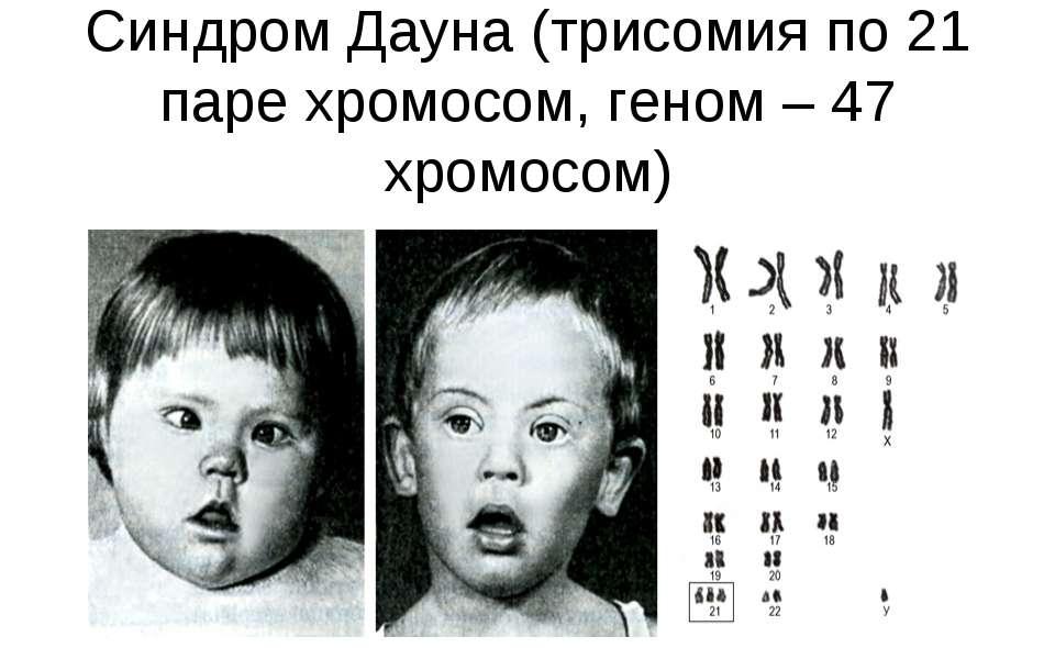 Молекулярно-цитогенетическая диагностика распространенных хромосомных нарушений (анеуплоидий) по 13,16,18,21,22,x,y-хромосом