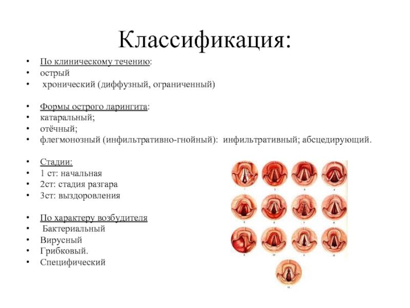 Удаление аденоидов современными методами