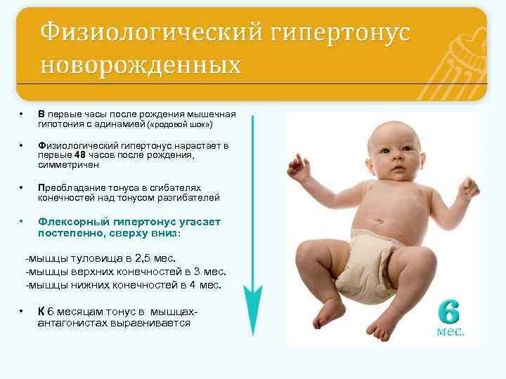 Гипертонус у ребенка — популярный диагноз.