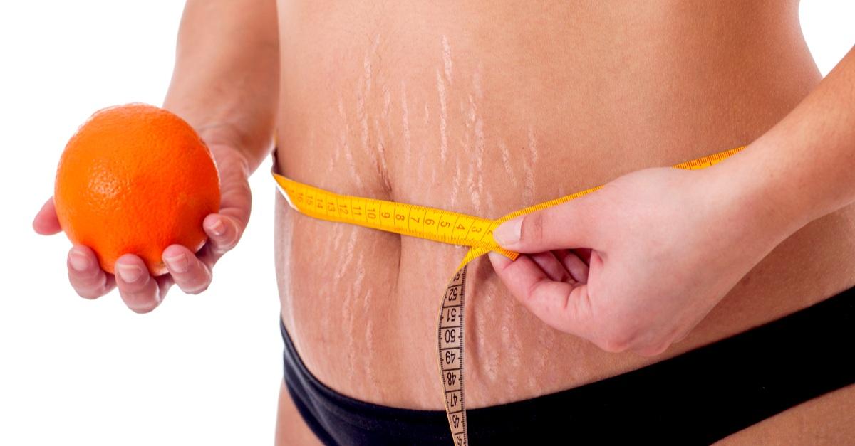 Крем от растяжек для беременных:какой лучше