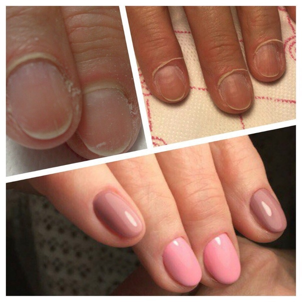 Маникюр и педикюр при беременности - что можно и чего нельзя • журнал nails
