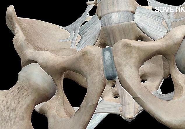 Дисфункция лобкового симфиза     kinesiopro