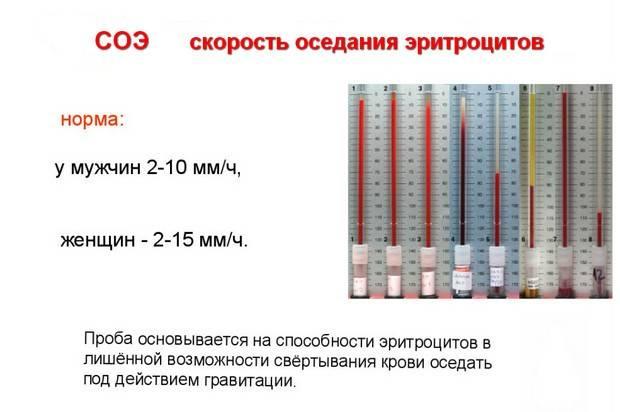 Соэ при беременности: норма в крови у беременных в 1, 2 и 3 триместрах по неделям, показатель по вестергрену