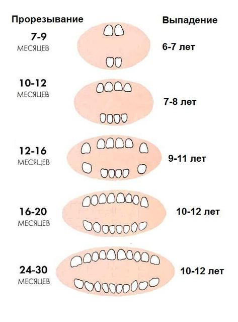 Пластика уздечки верхней губы у детей и показания к ней   лазерная пластика уздечки верхней губы