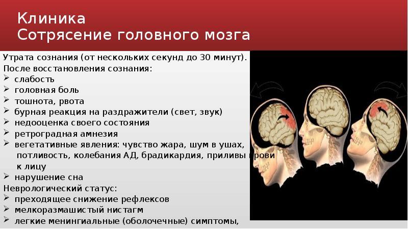 Сотрясение головного мозга – симптомы, признаки, первая помощь, степени повреждения