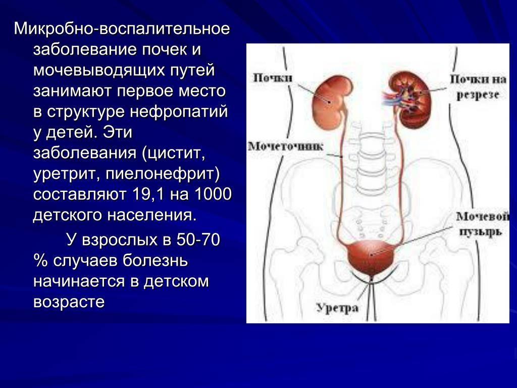 Инфекции мочевыводящих путей (имвп) у детей. информация для родителей. - доказательная медицина для всех
