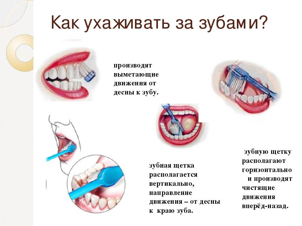 Уход за молочными зубами у детей