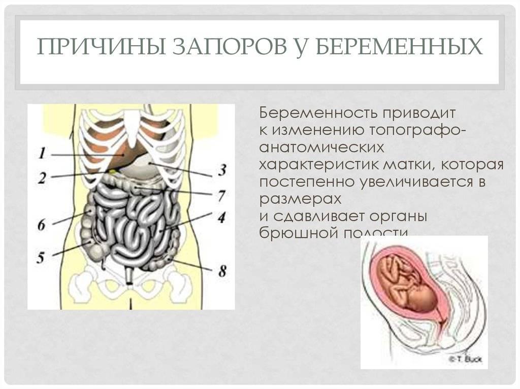 Запор при беременности: причины, что делать беременным при запоре. бифилакт биота