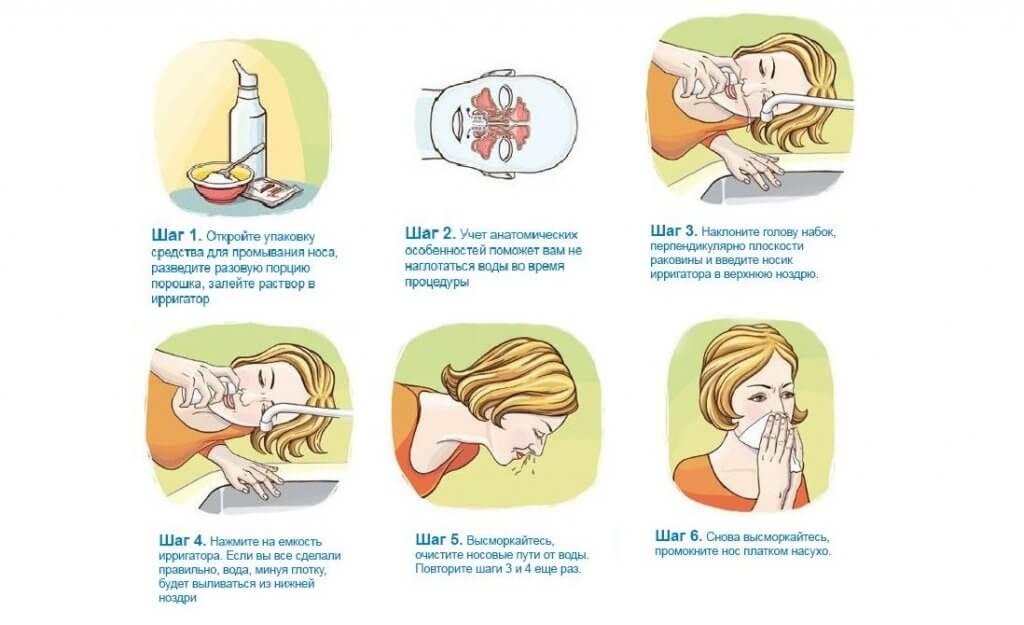 Физраствор для промывания в нос: детям 1-5 лет, грудничку и новорожденному