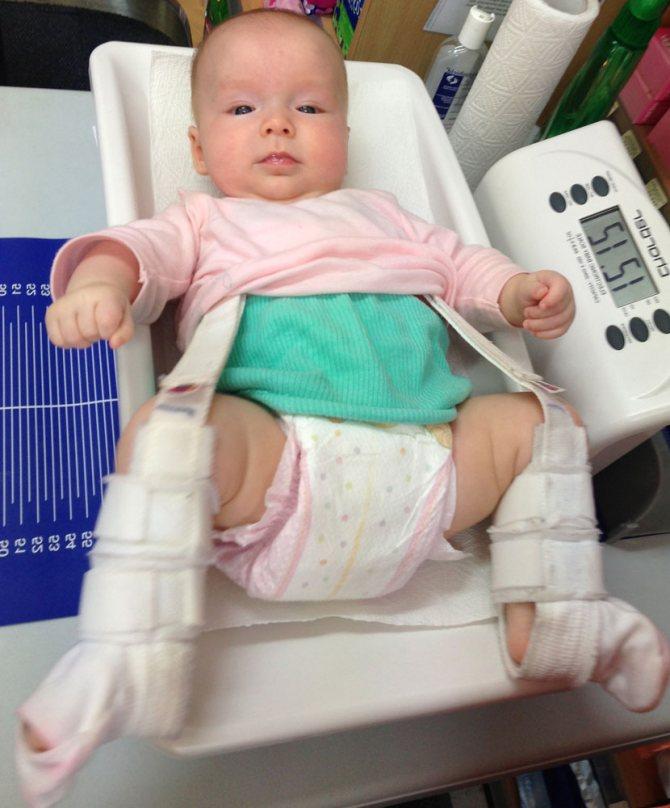 Каких врачей проходят в месяц новорожденные – осмотр грудничка в 1 месяц
