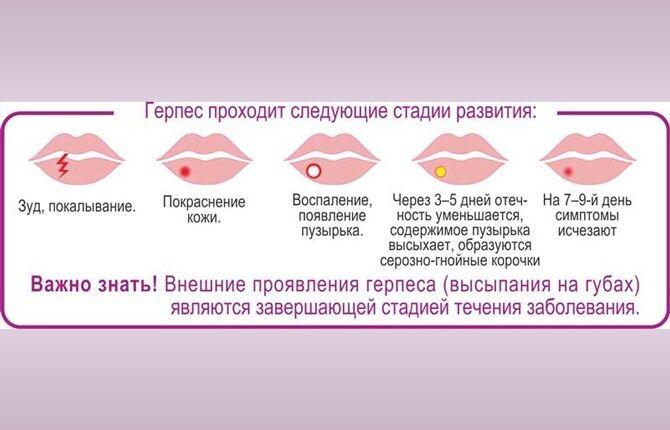 Герпес при беременности - медицинский портал eurolab