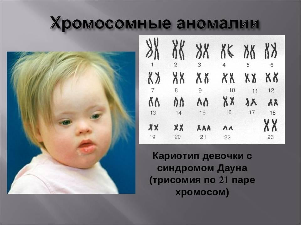 Дети с синдромом дауна: причины и лечение