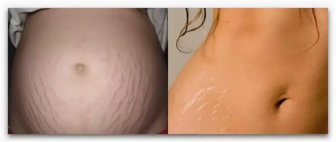 Средство для упругости кожи при беременности