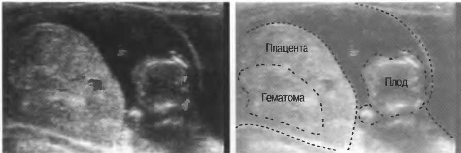 Редукция эмбрионов: что это такое и когда проводят?