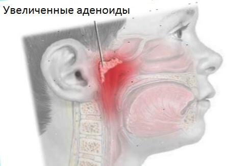 Об аденоидах. аденоиды без операции