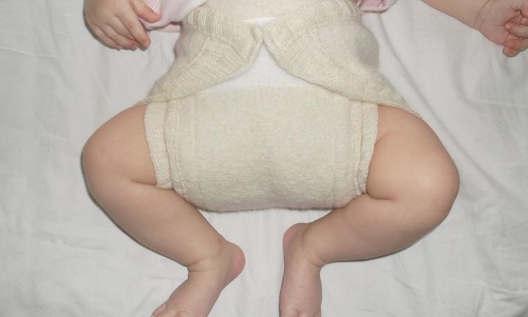 Тазобедренный сустав – дисплазия у подростков