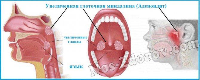 Гипертрофия аденоидов. лечить или удалять? - лор клиника №1