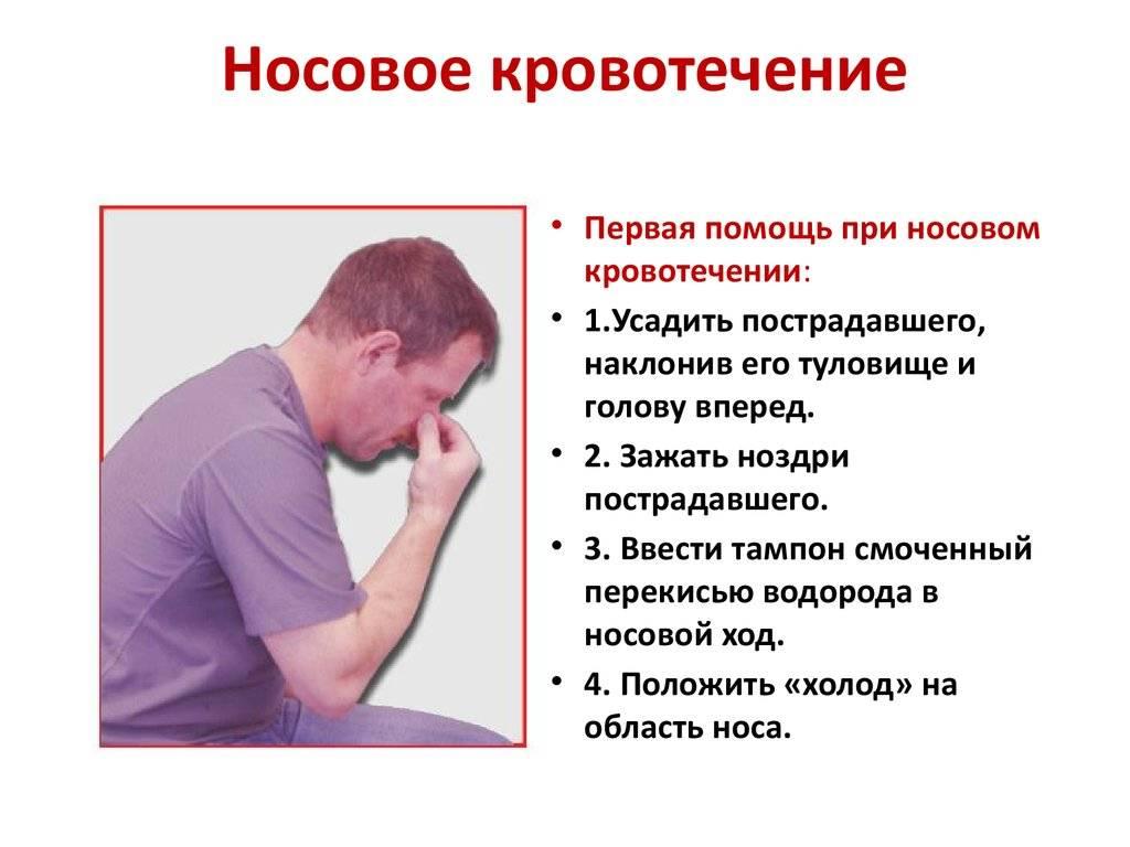 Причины и лечение носового кровотечения у подростков